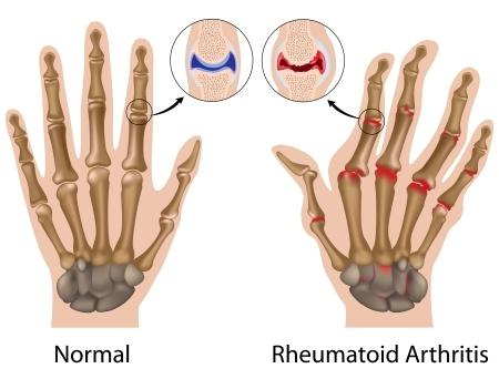 Ist Fingerknacken Schädlich