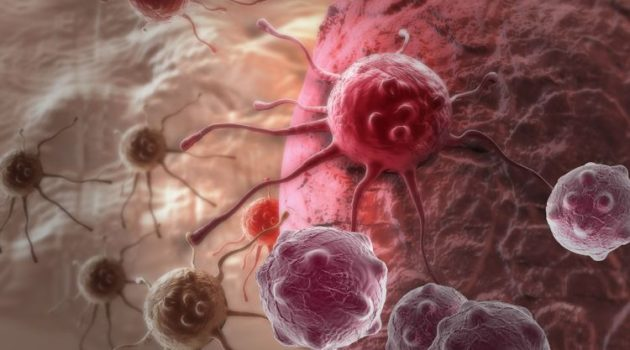 Krebszellen, Fotoquelle: 123RF
